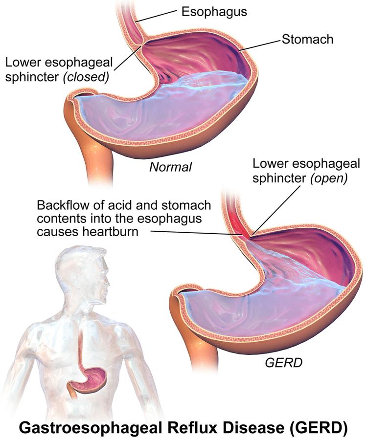Chart explaining Gastroesophageal reflux disease